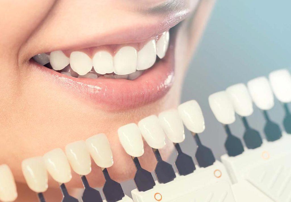 Faccette dentali: un sorriso perfetto senza operazioni invasive